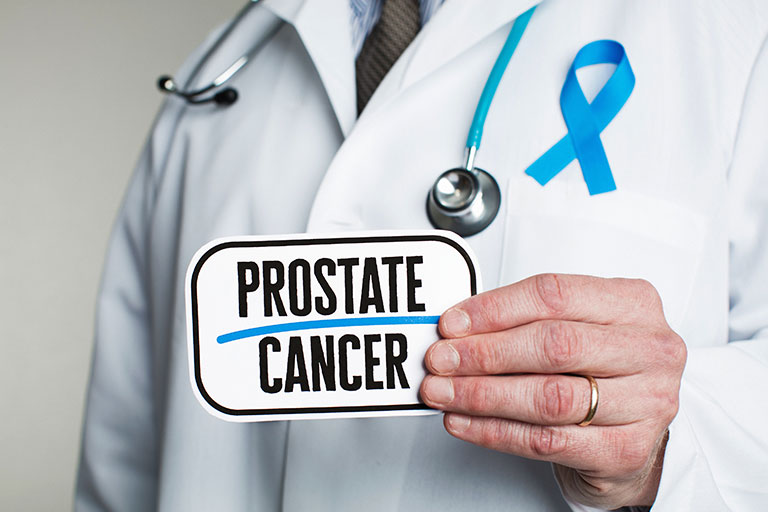 Prostate Cancer - Radical prostatectomy